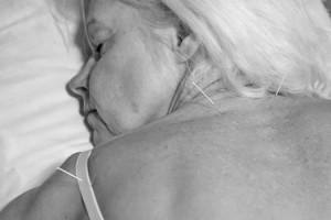 Akupunktiosta apua moniin eri kiputiloihin