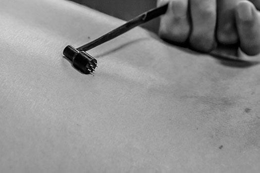 Akuvasara (Akupunktio Keijo Karjalainen - Kangasala)
